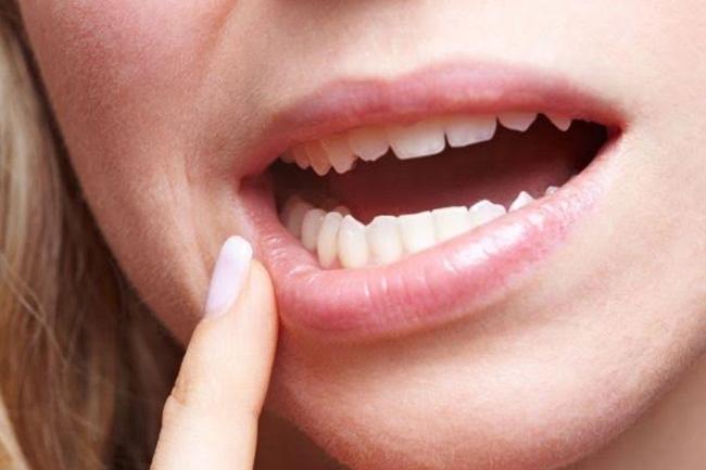 Corelatia dintre boala parodontală şi diabet